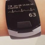 2016-01 Langzeit-EKG